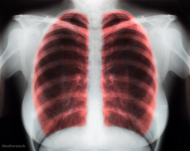 magas vérnyomás teljes eliminációja galagonya tinktúra és magas vérnyomás