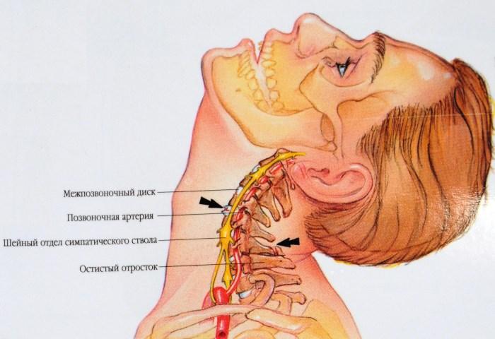 A nyakfájás - Dr. ORMOS GÁBOR PhD