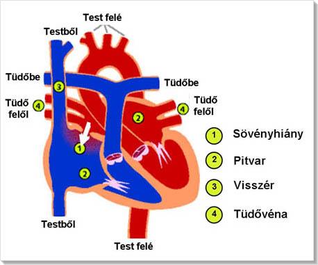 Magas vérnyomás buteyko kezelés