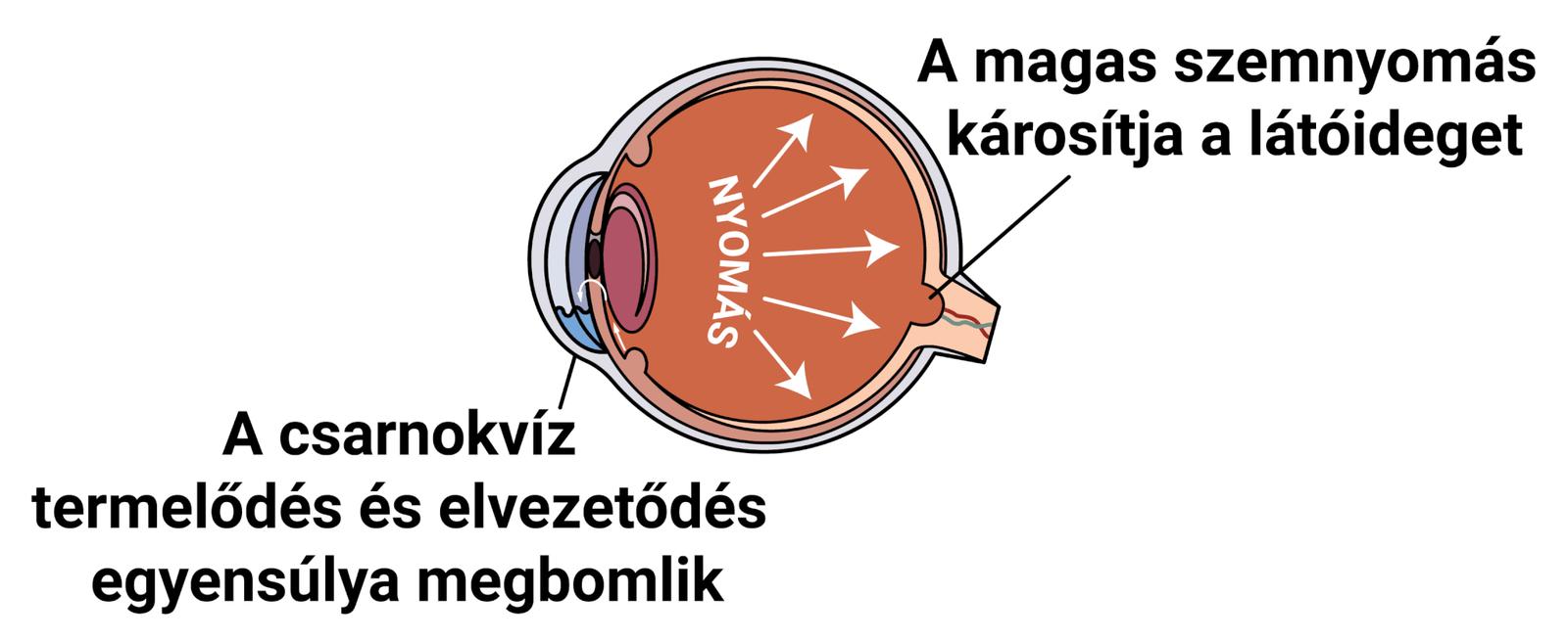 magas vérnyomás és glaukóma magas vérnyomás II