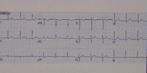 EKG elemzés magas vérnyomás esetén egészséges életmód mint a magas vérnyomás megelőzése