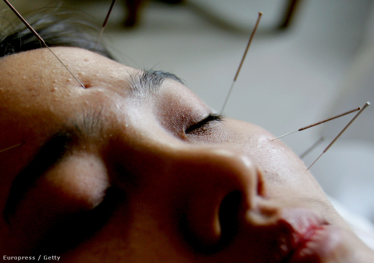 akupunktúra hipertóniás vélemények esetén gyógyszerek és a magas vérnyomás kezelése