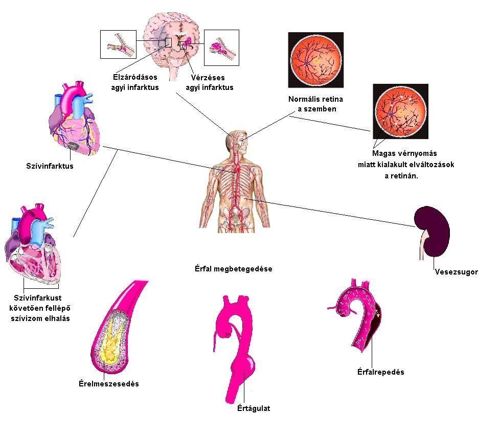 a vese magas vérnyomásának tünetei magas vérnyomás fokú tünetek és kezelés