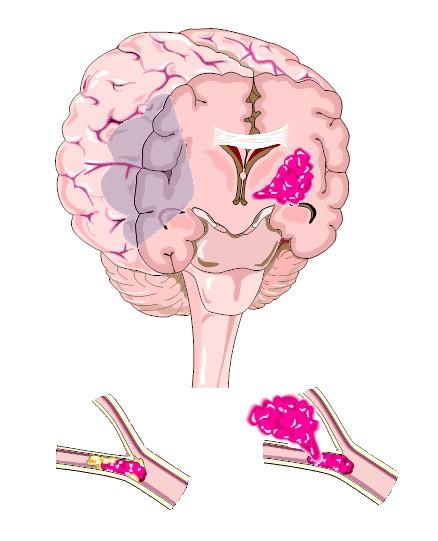 hogyan és hol fáj a fej magas vérnyomásban diéta magas vérnyomásért időseknél