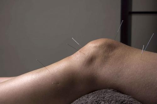 akupunktúra hipertóniás vélemények esetén gyógyszer analógok olcsó magas vérnyomás elleni gyógyszerek analógjai