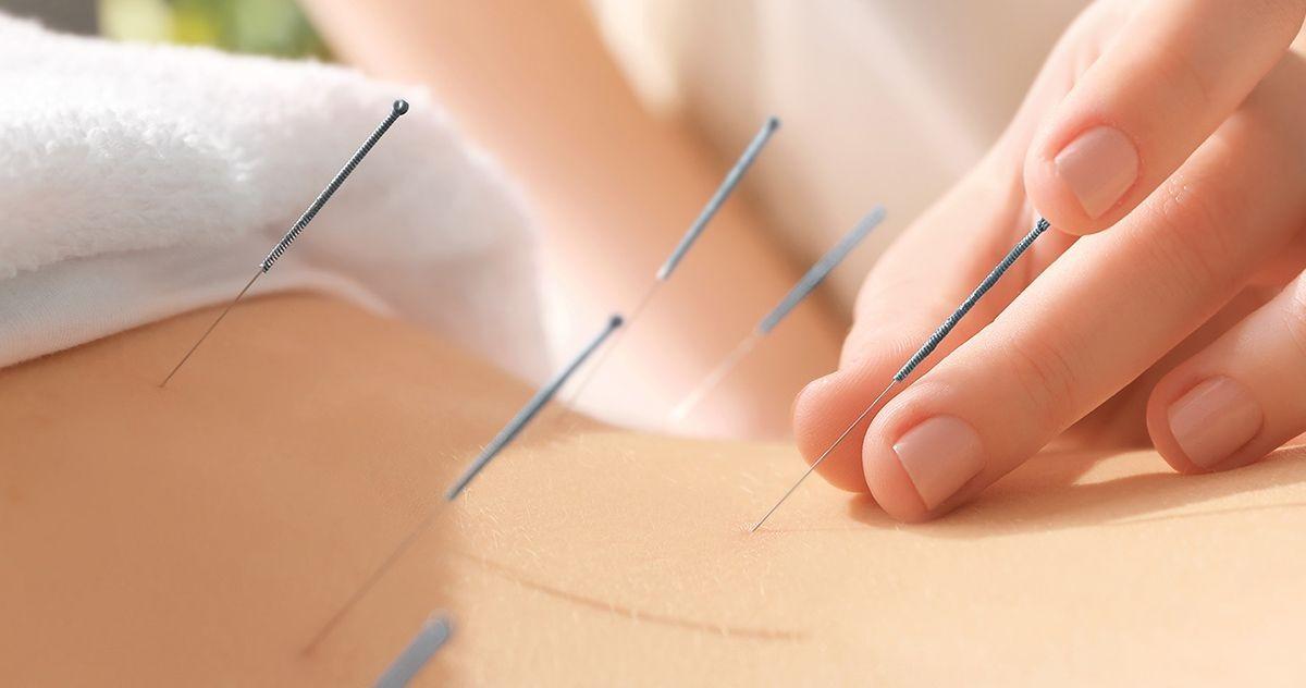 akupunktúra hipertóniás vélemények esetén hipertóniás cukorbetegség esetén ajánlott gyógyszer