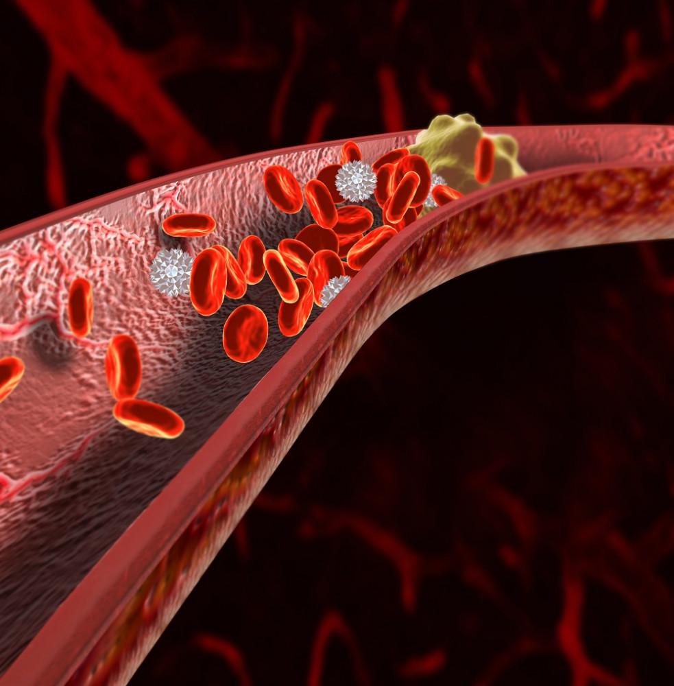 angina pectoris és magas vérnyomás