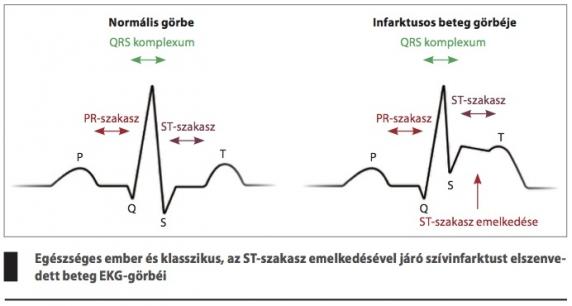 EKG magas vérnyomás esetén tranexam magas vérnyomás esetén