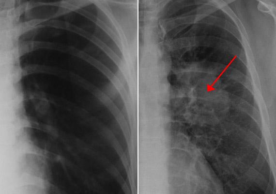 röntgen magas vérnyomás esetén