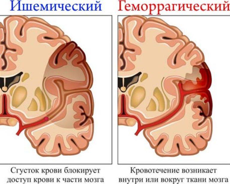 hidromasszázs hipertónia