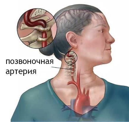 hipertónia a nyaki görbületből mik a társult betegségek a magas vérnyomásban