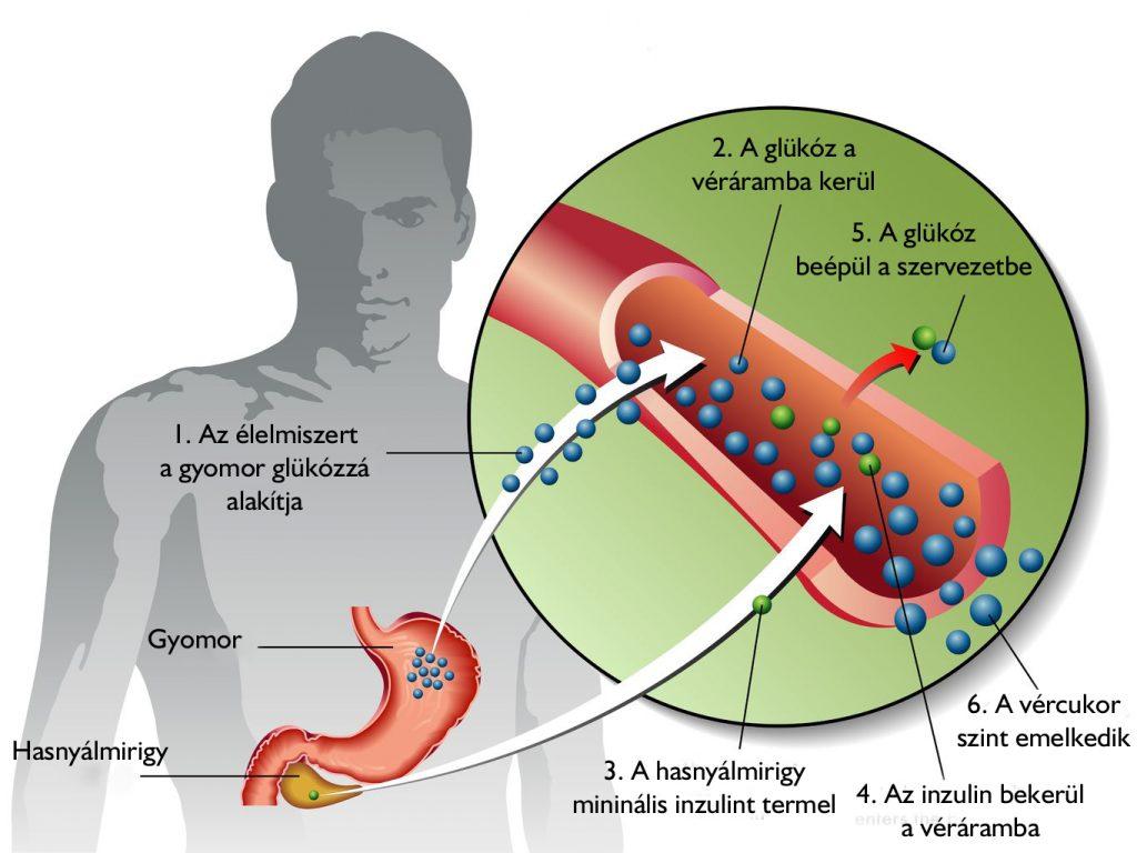 magas vérnyomás 2-es típusú cukorbetegségben magas vérnyomás és lekvár