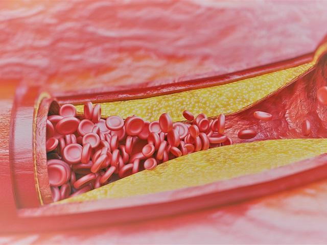 magas vérnyomás a nyaki erekből vitaminok magas vérnyomásban szenvedő nők számára
