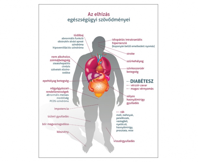 akupresszúra és magas vérnyomás másodlagos nephrogén magas vérnyomás