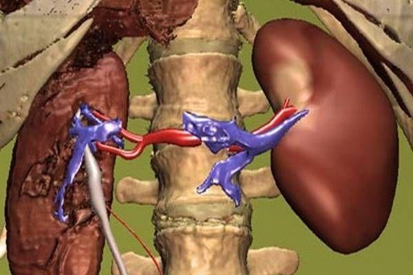 magas vérnyomás fokozott pulzus kezelés böjt fórum hipertónia