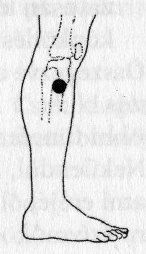 pontok a magas vérnyomásban szenvedő szemeken