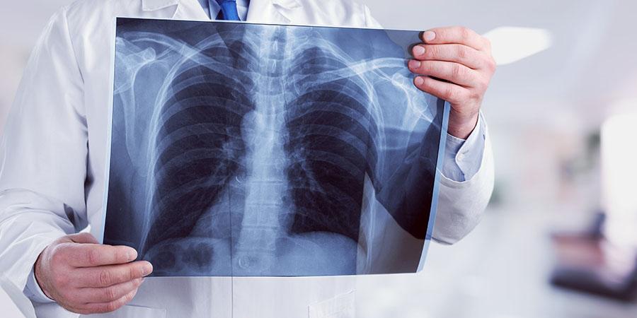 Asztma gyógyszer és magas vérnyomás: ha a két betegség együtt jár