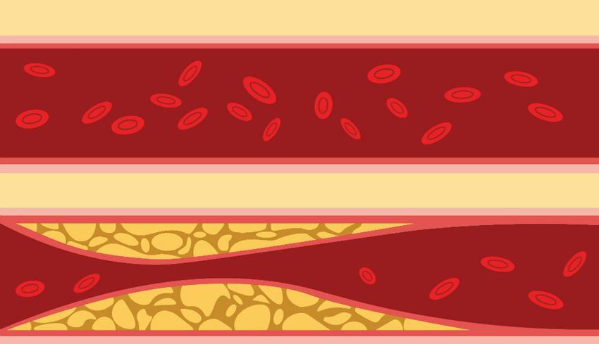 magas vérnyomás okozta szívbetegség escuzan magas vérnyomás