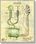 kísérő betegségek a magas vérnyomás 3 fokozatában sófürdők magas vérnyomás