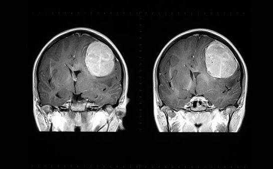 agydaganatok és magas vérnyomás