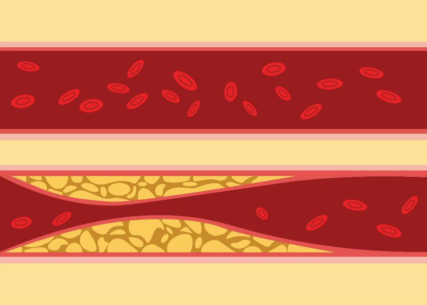 magas vérnyomás és népi gyógymódokkal gyógyítható